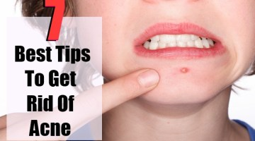 7 Best Tips To Get Rid Of Acne