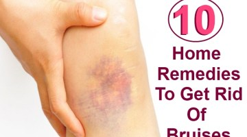 10 Effective Home Remedies To Get Rid Of Bruises Fast