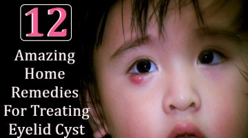 12 Amazing Home Remedies For Treating Eyelid Cyst