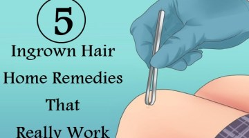 5 Ingrown Hair Home Remedies That Really Work