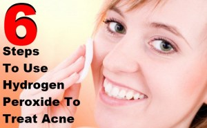6 Simple Steps To Use Hydrogen Peroxide To Treat Acne