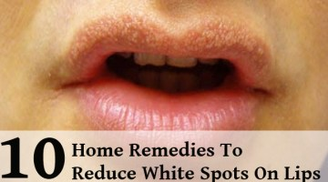 10 Effective Home Remedies To Reduce White Spots On Lips