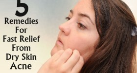 Remedies For Fast Relief From Dry Skin Acne
