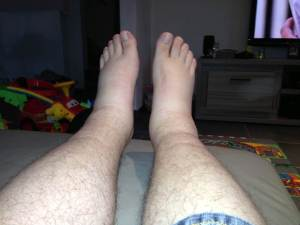 Gezwollen voeten, bijwerkingen verapamil