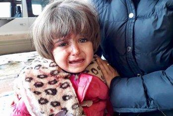 bambina-afrin-siria-ferita