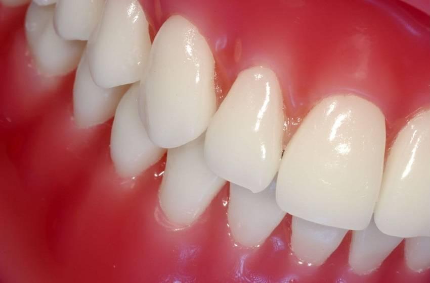 Ways to Fight Gum Diseases