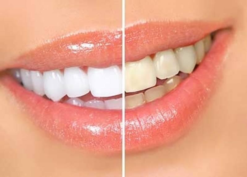 Clareamento Dental Particular Preco Lira Odonto