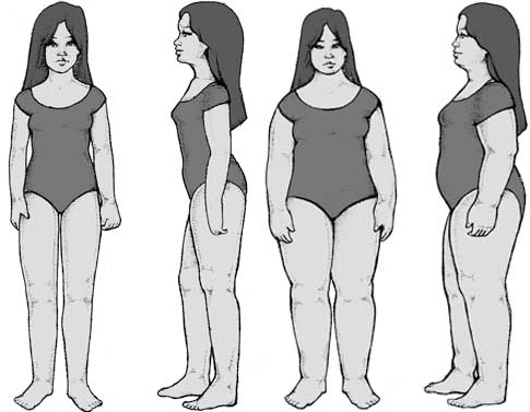 Body Types - Lymphatic Type
