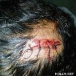 مدير مدرسة بالمزاحمية يضرب طالباً.. ويدخل والده المستشفى