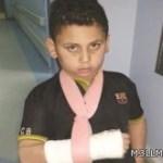 التحقيق مع معلم بالقطيف متهم بكسر ذراع أحد طلابه