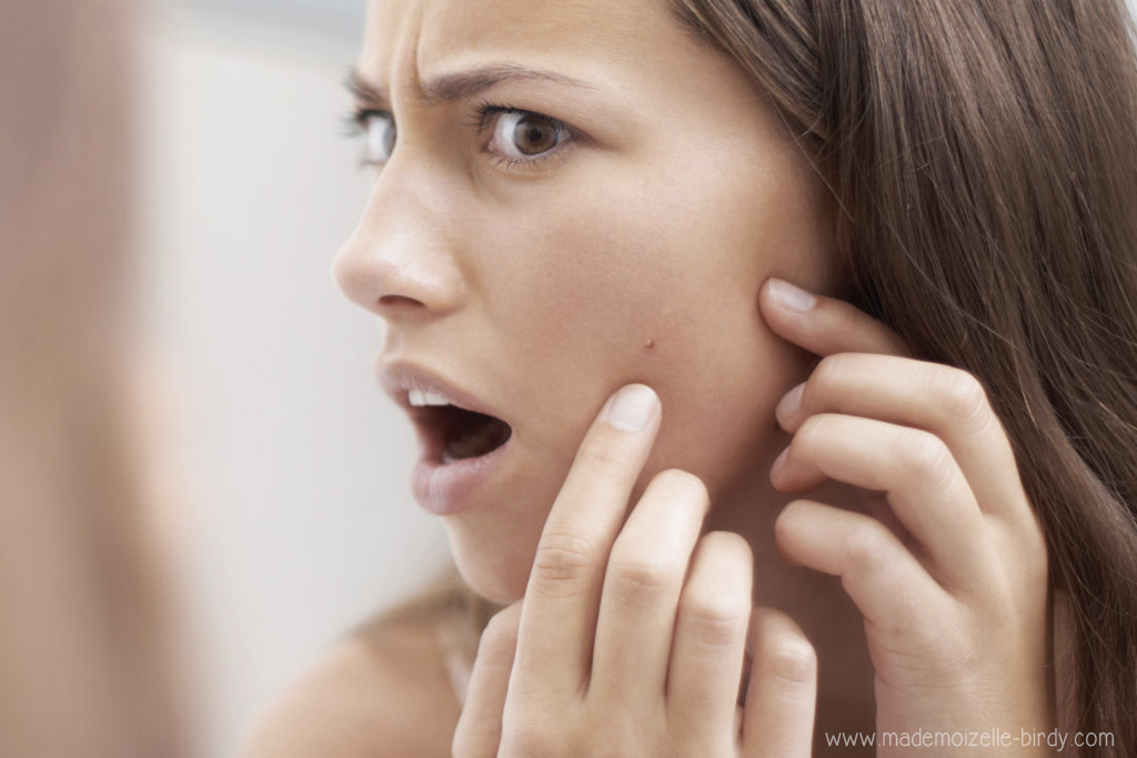 comment-eliminer-un-bouton-web-rapidement-astuce-solution-acne-spot-avis-blog