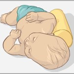 Positional-plagiocephaly3