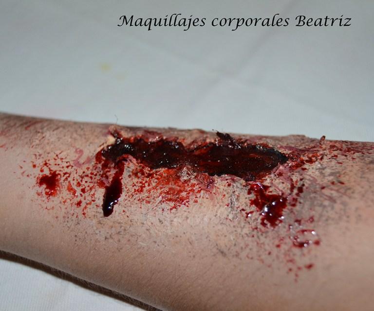 Caracterización herida brazo