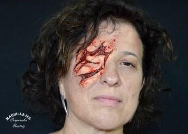 Herida en un ojo con espuma de látex