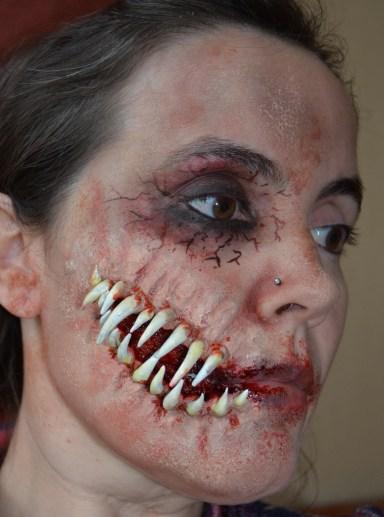 Prótesis dientes