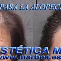 levantar parpados sin cirugia Marbella tratamiento de ojeras Marbella. celulitis Marbella, dermopigmentación capilar eliminacion arrugas Marbella micropigmentación capilar Marbella.