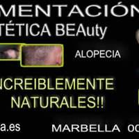 CICATRICES EN EL CUERO CABELLUDO TRATAMIENTO en Marbella>>;->>or dermopigmentacion capilar Murcia dermopigmentacion capilar en San Pedro