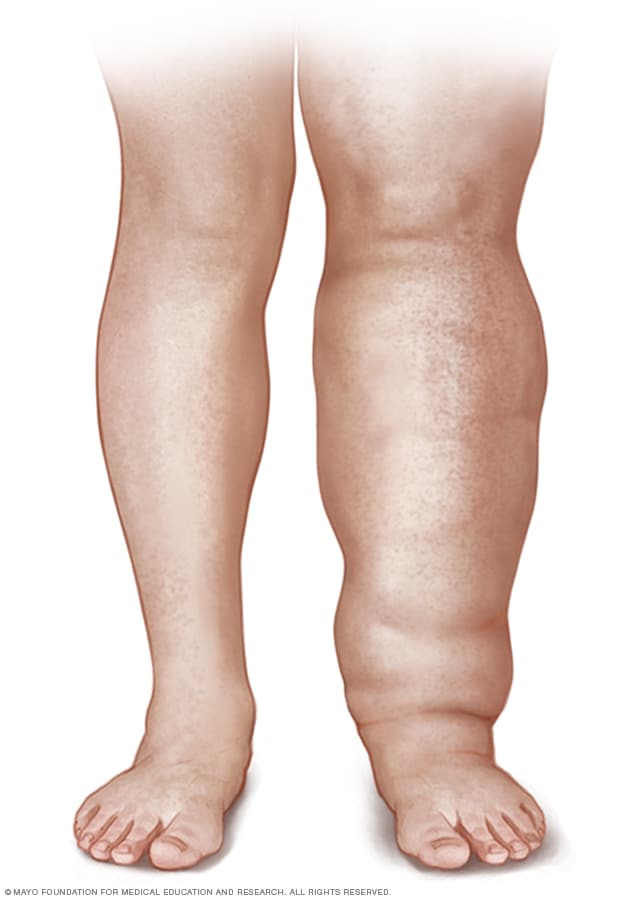 Lymphedema   Symptoms and causes   Mayo Clinic Illustration of a person with leg lymphedema