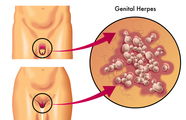 How Can I Tell If I Have Genital Herpes? 2