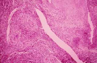 Granulome Tuberculoïde