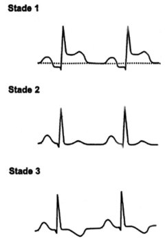 Various stages of pericarditis