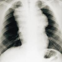 Cliché thoracique de face d'un patient atteint de maladie de Hodgkin mettant en évidence une volumineuse masse polylobée se développant dans le médiastin supérieur. Le rapport médiastino-thoracique en D5/D6 est supérieur à un tiers