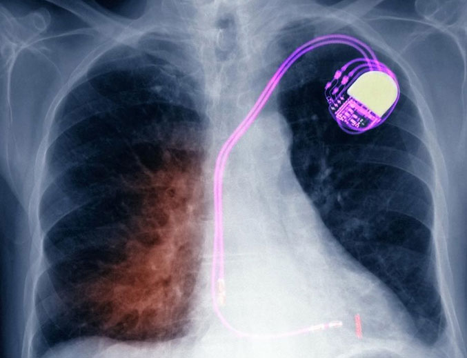 Monitoring a Patient with a Simple Pacemaker or Defibrillator