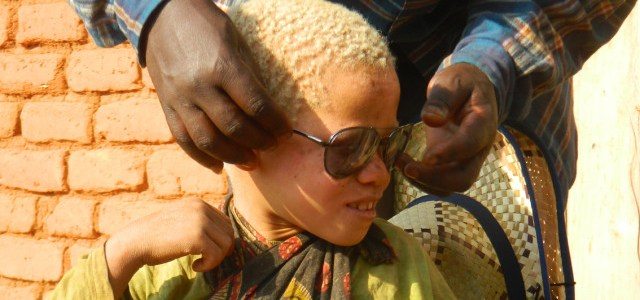 People with Albinism and Humanitarian NGOs in Tanzania: Identities between Local and Global Worlds