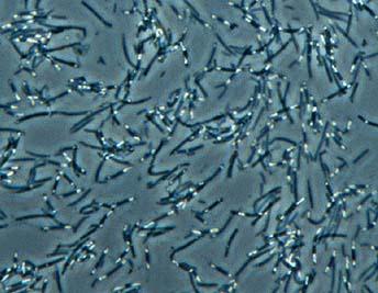bacteria under microscope