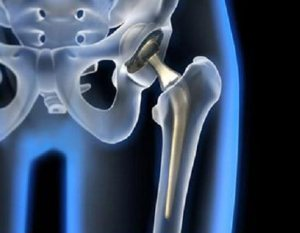 Protesis-cadera1