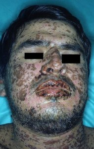 Persona afectada por el Síndrome de Stevens Johnson.
