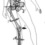 The Influence of the Hip and Foot on Patellofemoral Pain