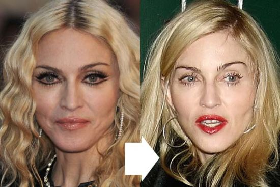 Madonna Plastic Surgery Before and After Pic