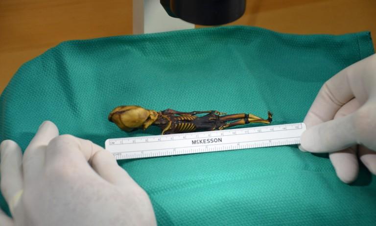 Le mystérieux squelette de l'Atacama n'est pas extraterrestre