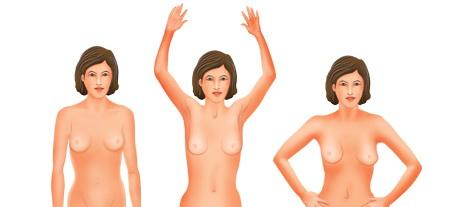 breast_self_examination_u-1