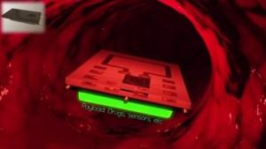implant_bloodstream