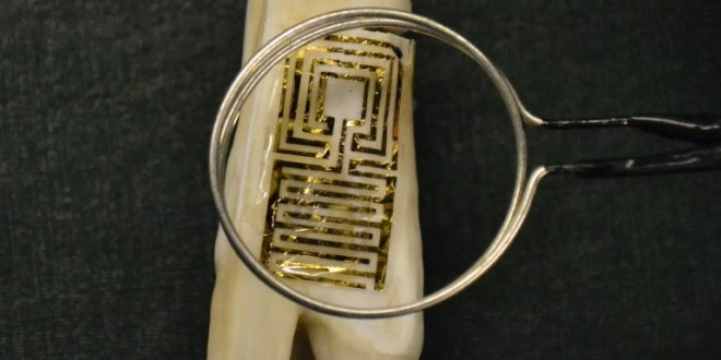 graphene-tooth-sensor
