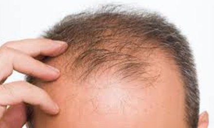 Balding? 5 Grooming Products For Thinning Hair