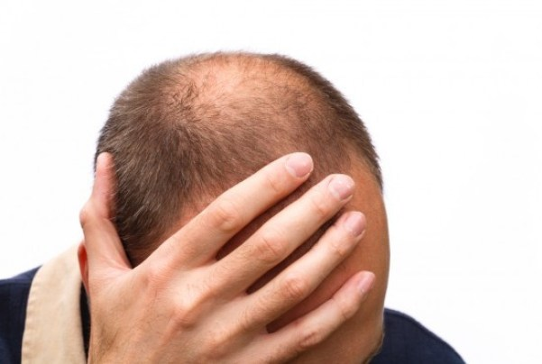 best grooming products for balding men