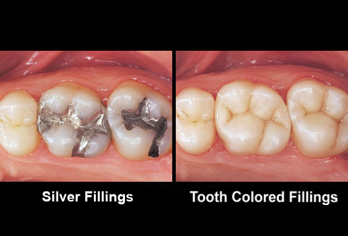 Tooth colored fillings and silver fillings