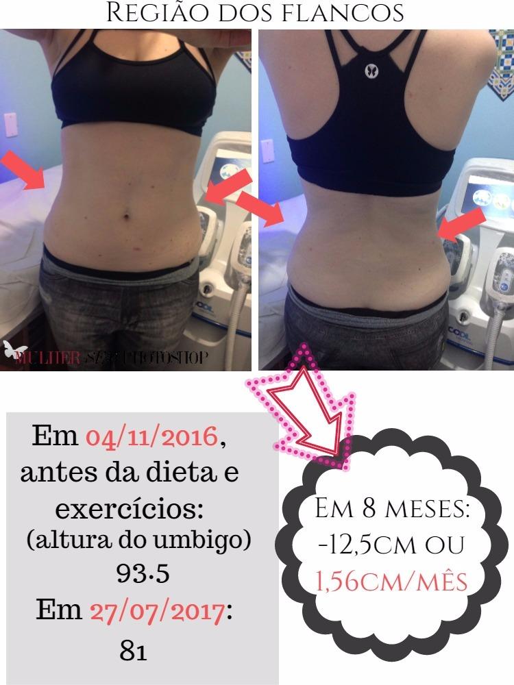 Fabuloso Criolipólise - antes e depois - resultados - Mulher sem photoshop LP45