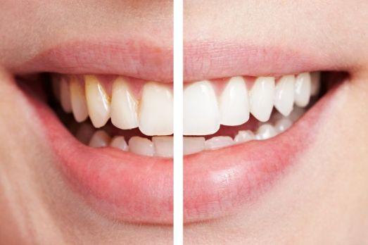 Vitacare toothpaste