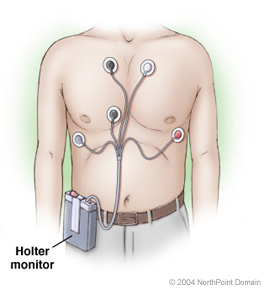 cardiology physician assistant holter monitor