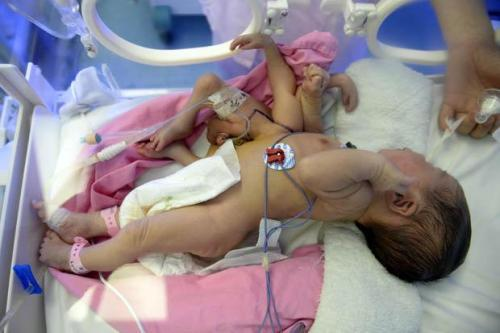 4legs 500x333 Baby Born With 4 Legs And 4 Hands Operated [Must See]