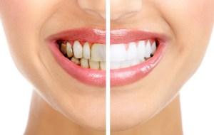 Çürüyen diş nasıl kurtarılır ?