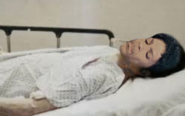 prince cause of death drug overdose