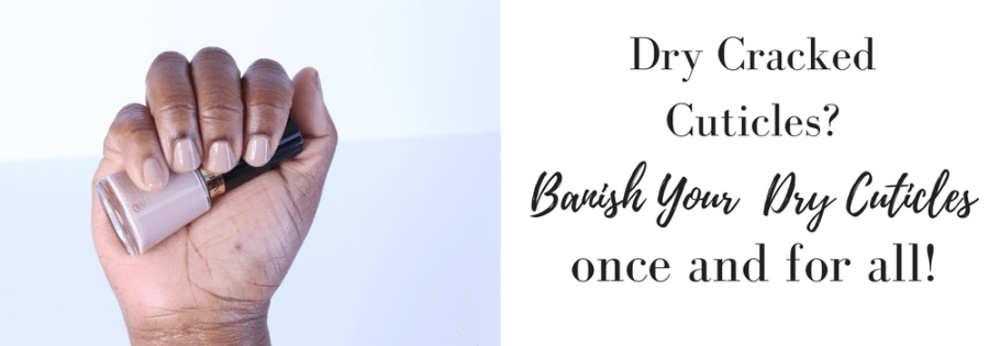Banish Your Dry Cracked Cuticles