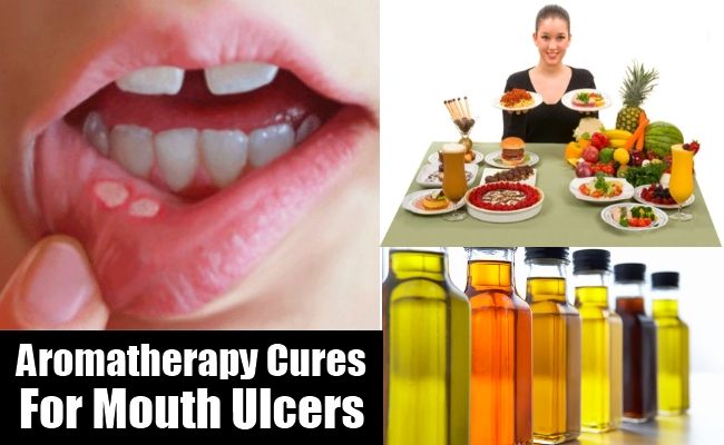 Can You Cure Tuberculosis Naturally