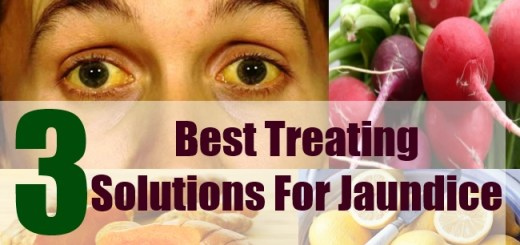 3 Best Treating Solutions For Jaundice
