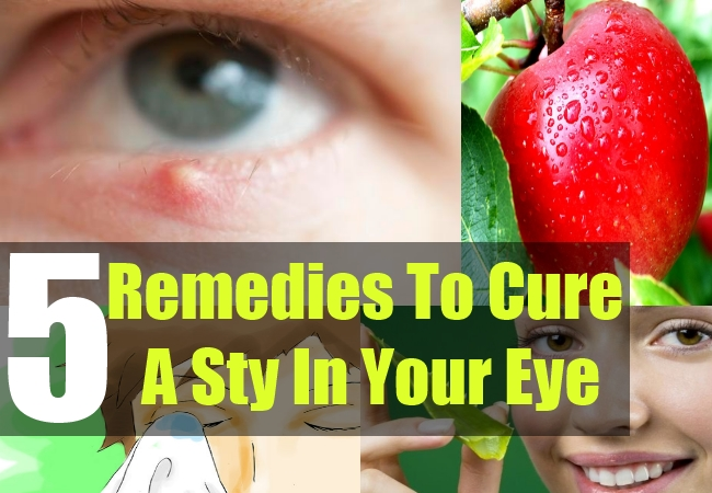 how to get rid of a stye in 2 hours